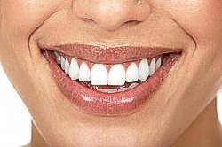 Leistung ästhetische Zahnheilkunde