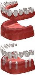 Leistung Implantatprothetik 2er