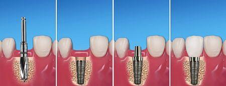 Leistung Implantatprothetik 4er